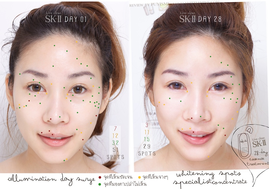 //lovelylittlemine.com/wp-content/uploads/2013/05/SKII-Before-After-spots%2028%20Days-by-PuYisme_R.jpg